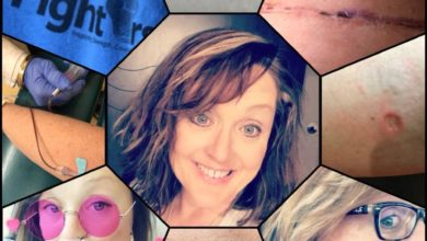 Photo of Cancer advocate reminds truckers May is Melanoma Awareness Month